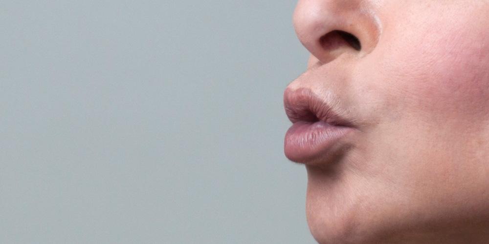 labbra - Dott.ssa Daniela Cangelosi, medicina ad indirizzo estetico